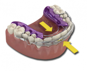 how-does-an-inman-aligner-work