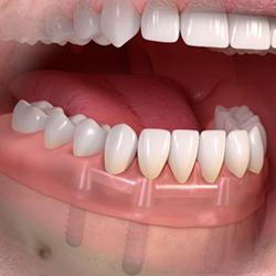 implant-bar-2