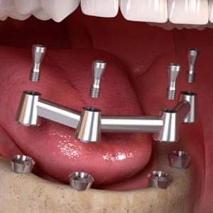 implant-bar