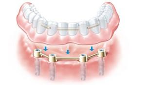 implant-retained